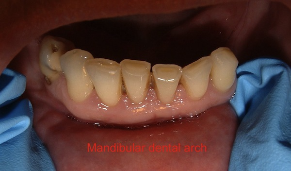 rdh case study Dental hygiene case study presentation quadrant one- (02/6/2014) bp 130/85 r 20 p 66 temp 975 oraquix was discussed with patient and patient consented.